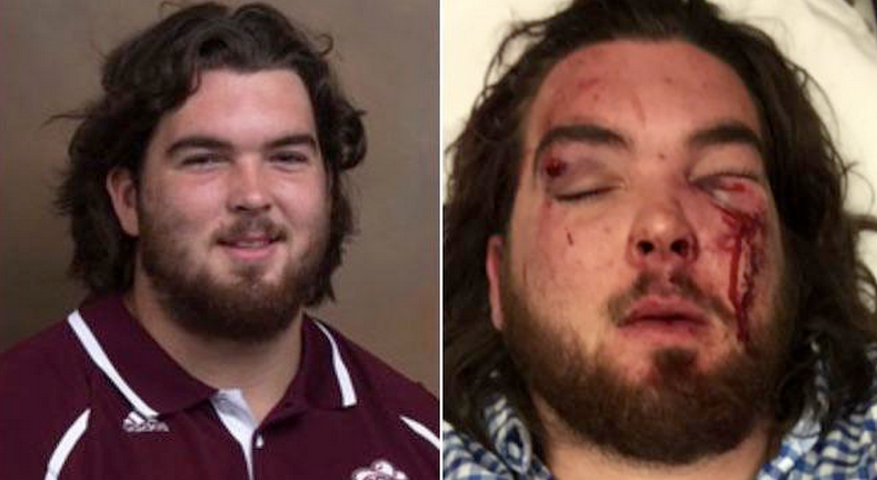 This Is What Happens When 1 EKU Football Player Takes On 3 From UK In A Bar Fight
