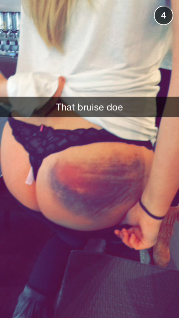 That there is one hell of a bruise.