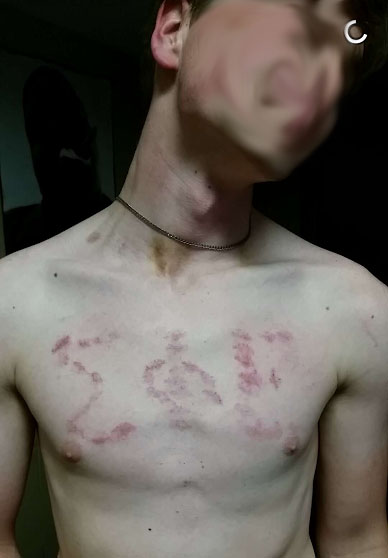 Are those...hickies?