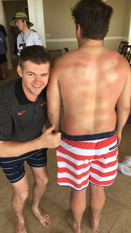 Maybe rub in the sunscreen next year, hoss.