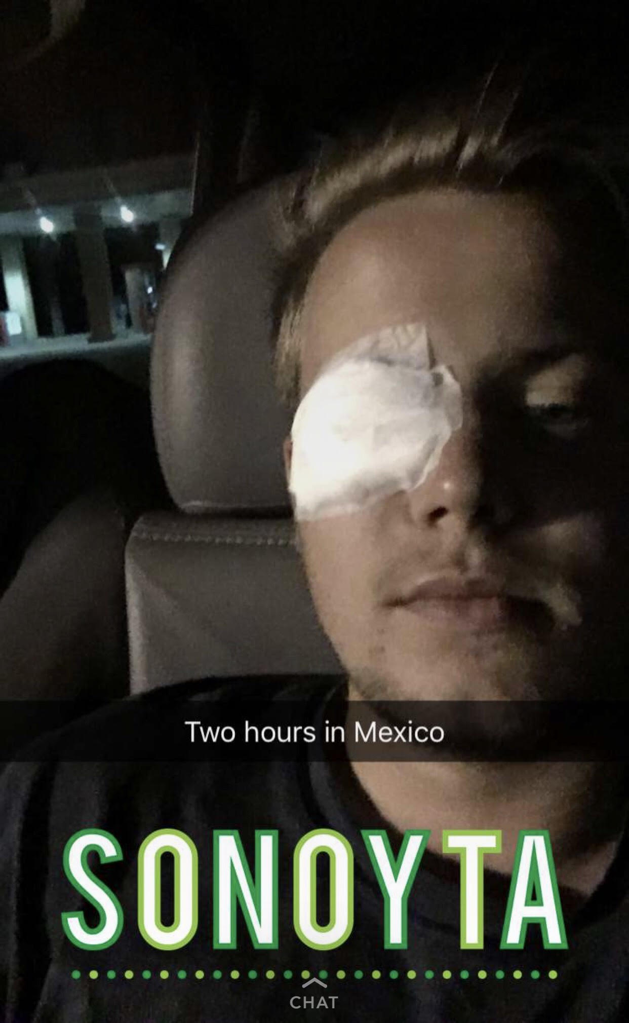 Two hours in Mexico and he lost a goddamn eye.